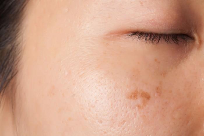 Los óleos etéricos para el acné