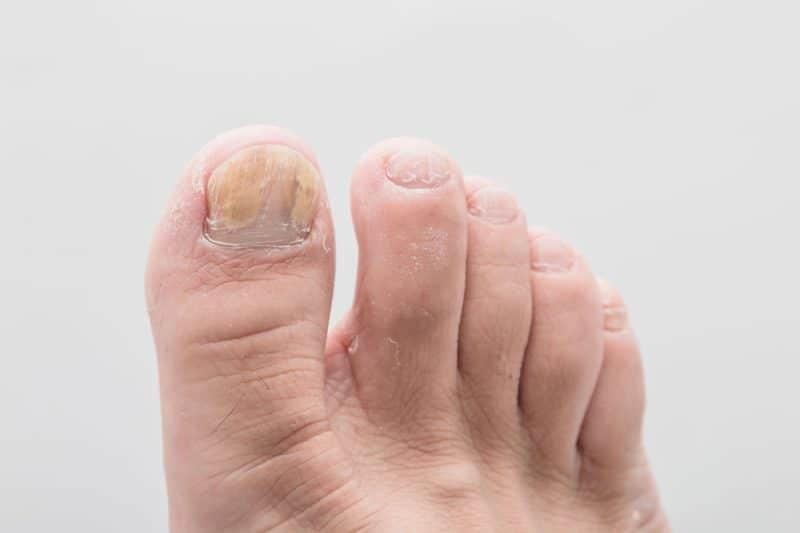 hongos dedos uñas pies